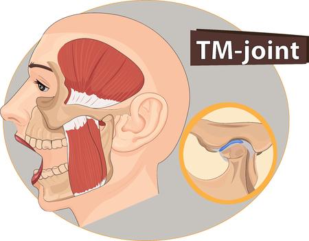 Vector illustration of Temporomandibular