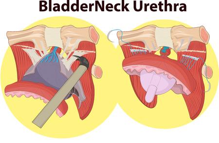 gallstones: Vector illustration of Bladder neck anatomy Illustration