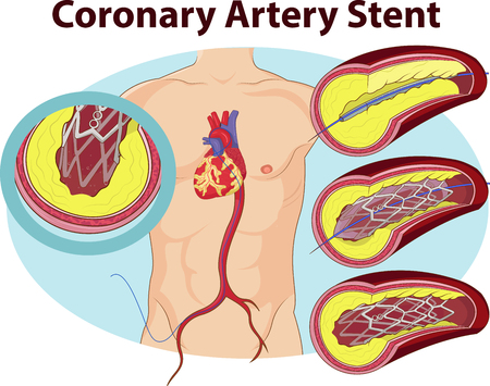 artery: Vector illustration of Coronary artery stent