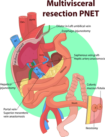 intestinal: Vector illustration of Intestinal and Multivisceral  anatomy