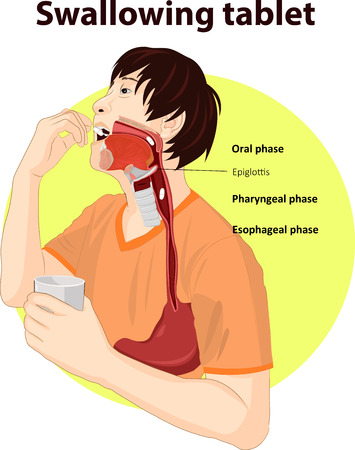 Vector illustration of Swallowing tablet