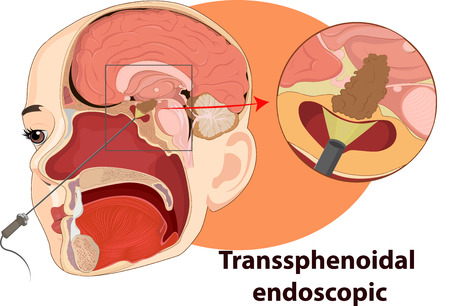 Vector illustration of Examination endoscopic anatomy