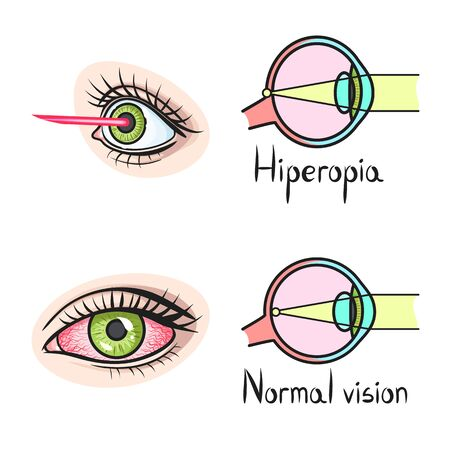 Vector illustration of vision and correction icon. Set of vision and optometrist stock symbol for web.  イラスト・ベクター素材