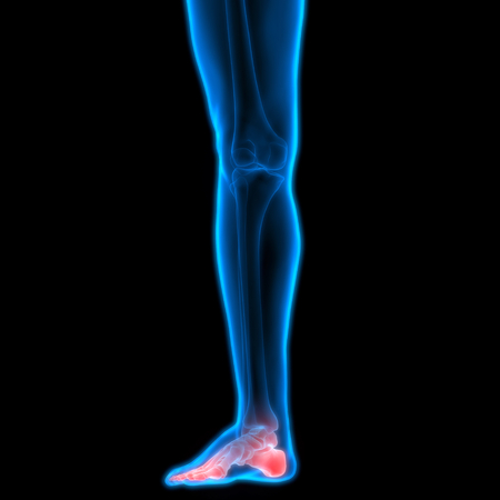 medical man: Human Body Bone Joint Pains (Leg Joint) Stock Photo