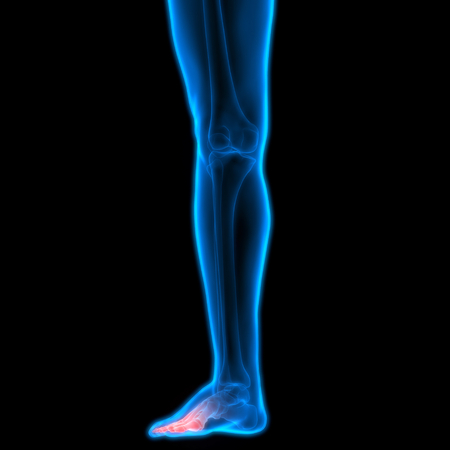 Human Body Bone Joint Pains (Leg Joint) Stock Photo