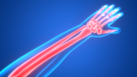Human Body Bone Joint Pains Anatomy (Hand Joints)