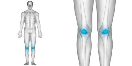 인체 뼈 관절 통증 해부학 (슬개골)