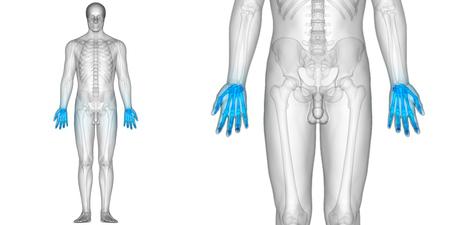 인체 뼈 관절 통증 해부학 (손가락 관절) 스톡 콘텐츠
