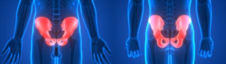 Human Body Bone Joint Pains Anatomy (Hip) Stock Photo