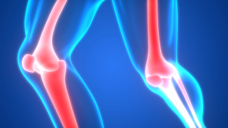 Human Body Bone Joint Pains (Knee Joints)