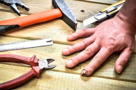 職場事故の影響。負傷者やステッチの指。