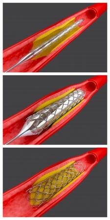 L'angioplastie par ballonnet procédure avec placement d'un stent Banque d'images