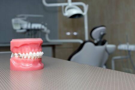 Orthodontic model and dentist tool - demonstration teeth model of varities of orthodontic bracket or brace. Metal and ceramic braces on teeth on an artificial jaws closeup. 免版税图像