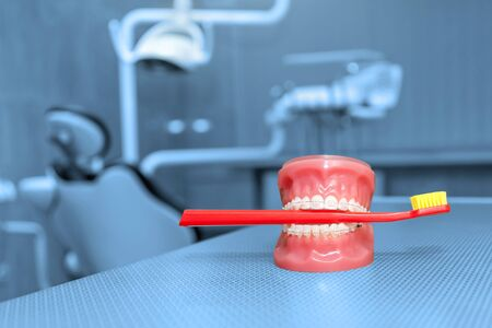 Orthodontic model and dentist tool - teeth model with ceramic braces on an artificial jaws closeup. Jaw model with red toothbrush. Dentistry, medicine, medical equipment and stomatology concept.