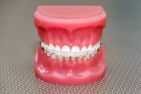 Orthodontic model and dentist tool - demonstration teeth model with ceramic braces on teeth on an artificial jaws closeup.