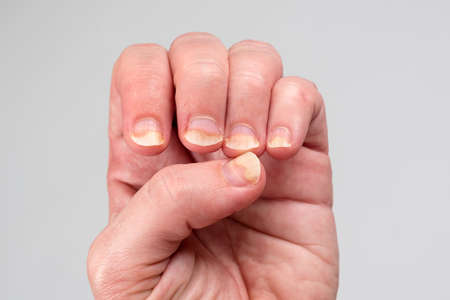 Onychomycosis or fungal nail infection on damaged nails after gel polish, onychosis. Longitudinal ridging nails with psoriasis. Nail diseases, health and beauty problem Reklamní fotografie