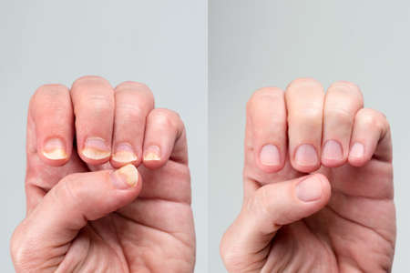 Before and after successful treatment for a onychomycosis or fungal nail infection on damaged nails after gel polish, onychosis. Longitudinal ridging nails with psoriasis, nail diseases