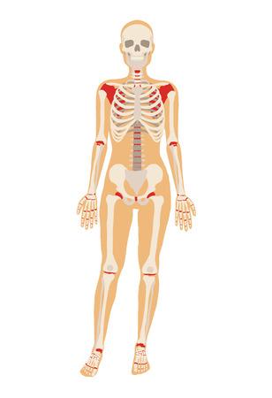 esqueleto: Mujer esqueleto. Vector ilustraci�n plana