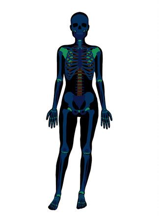 x stand: Mujer esqueleto de rayos x. Vector ilustraci�n plana Vectores