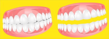 root canal: Dentures Illustration