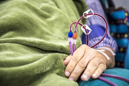 Hemodialysis in people on the equipment