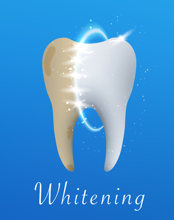 Tooth whitening Illustration. Tooth before and after whitening treatment. Graphic concept for your design