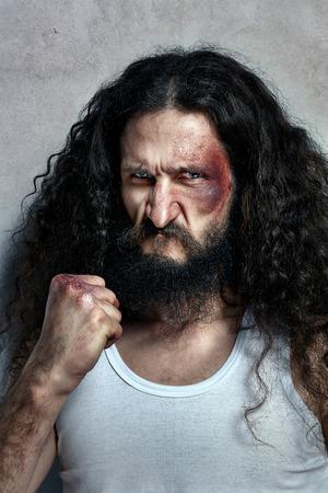 hombre flaco: Retrato de un luchador lesionado divertido Foto de archivo