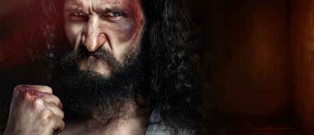 black eye: Closeup portrait of a dark-haired skinny puncher with a black eye