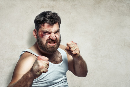hurt: Portrait of a funny wounded fighter Stock Photo
