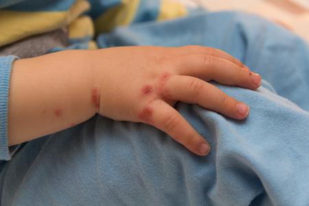 children hand with eczema