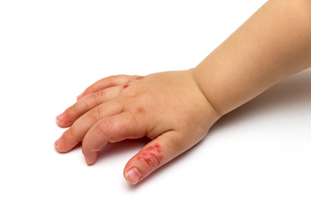 atopic: children hand with disease isolated on white background Stock Photo