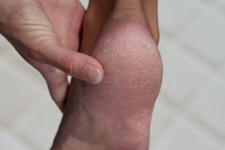 Woman treat cracked hard skin on the heel in the bathroom.