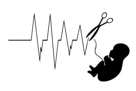 Vektor-Illustration des Abtreibungsfötus mit Herzschlag auf weißem Hintergrund. Anzeichen für Frühgeburt und Fehlgeburt.