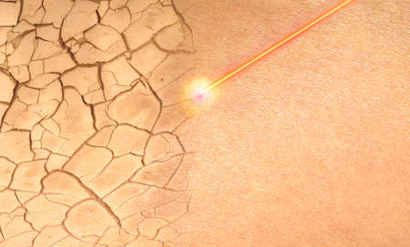 Concept repair damaged skin with a laser