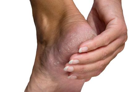 Soft focus cracked heel isolated white background