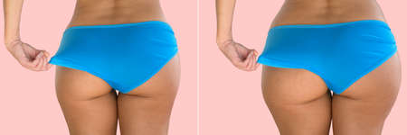 Overweight diet progress, healthy lifestyle woman on pink background.