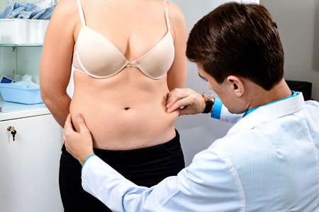 Practical consultation of the surgeon to remove excess fat in the abdomen. Examination of the patient before the liposuction procedure.