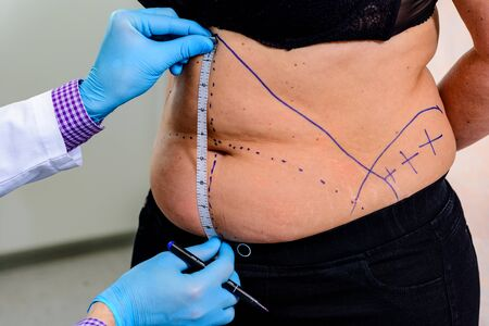 For clarity off  proses doctor drawing a dashed line on areas of the patient's body. Preparing for an operation to remove  fat Stock Photo