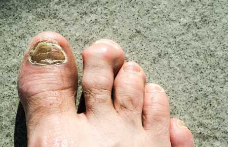 detail view of ugly male feet and toes affected by toe nail fungus and arhtritic hammertoes