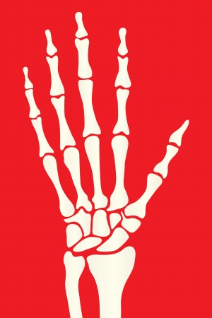 broken wrist: Hand skeleton