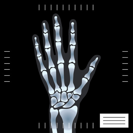wrist pain: human hand under X-rays. vector illustration on black background