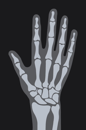 vector x-ray hand illustration.