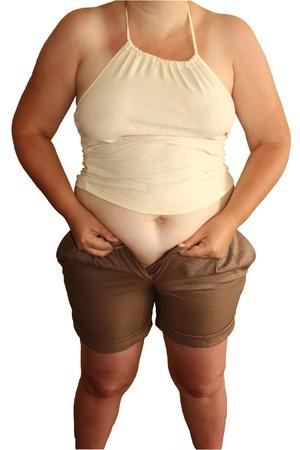 sobrepeso: una mujer gorda no pueden llevar pantalones cortos Foto de archivo
