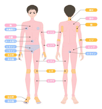 Hair loss area whole body male Illustration