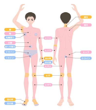 Hair loss area whole body male Vektorové ilustrace