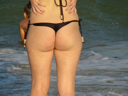 xxxl: cellulite,obesity of the body from improper diet.