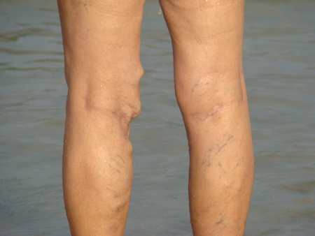 Krampfadern oder Thrombophlebitis in den Beinen älterer Menschen Standard-Bild - 61118491