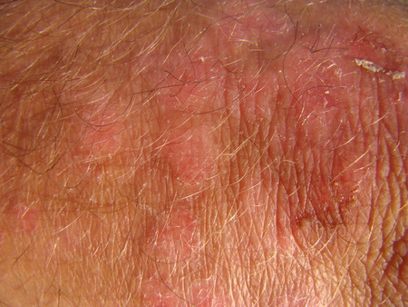 communicable: Psoriasis chronic non-communicable diseases
