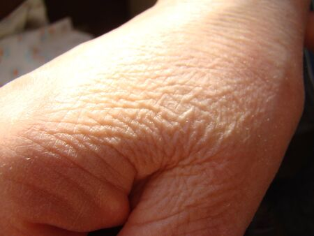 skin on the hand close-up, aging skin macro