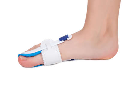 Special medical orthopedic bandage to nonsurgical treatment of a thumb deformity also known as Hallux Valgus.